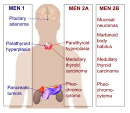 Which organs of the body are affected by MEN, multiple endocrine neoplasia, a rare disease?