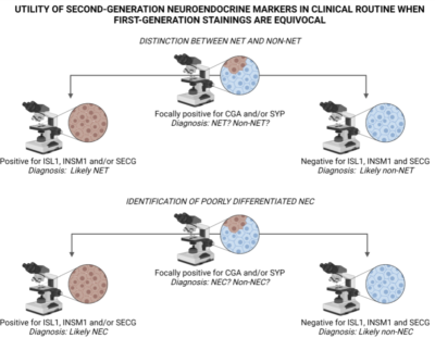 Second-Generation Neuroendocrine Markers